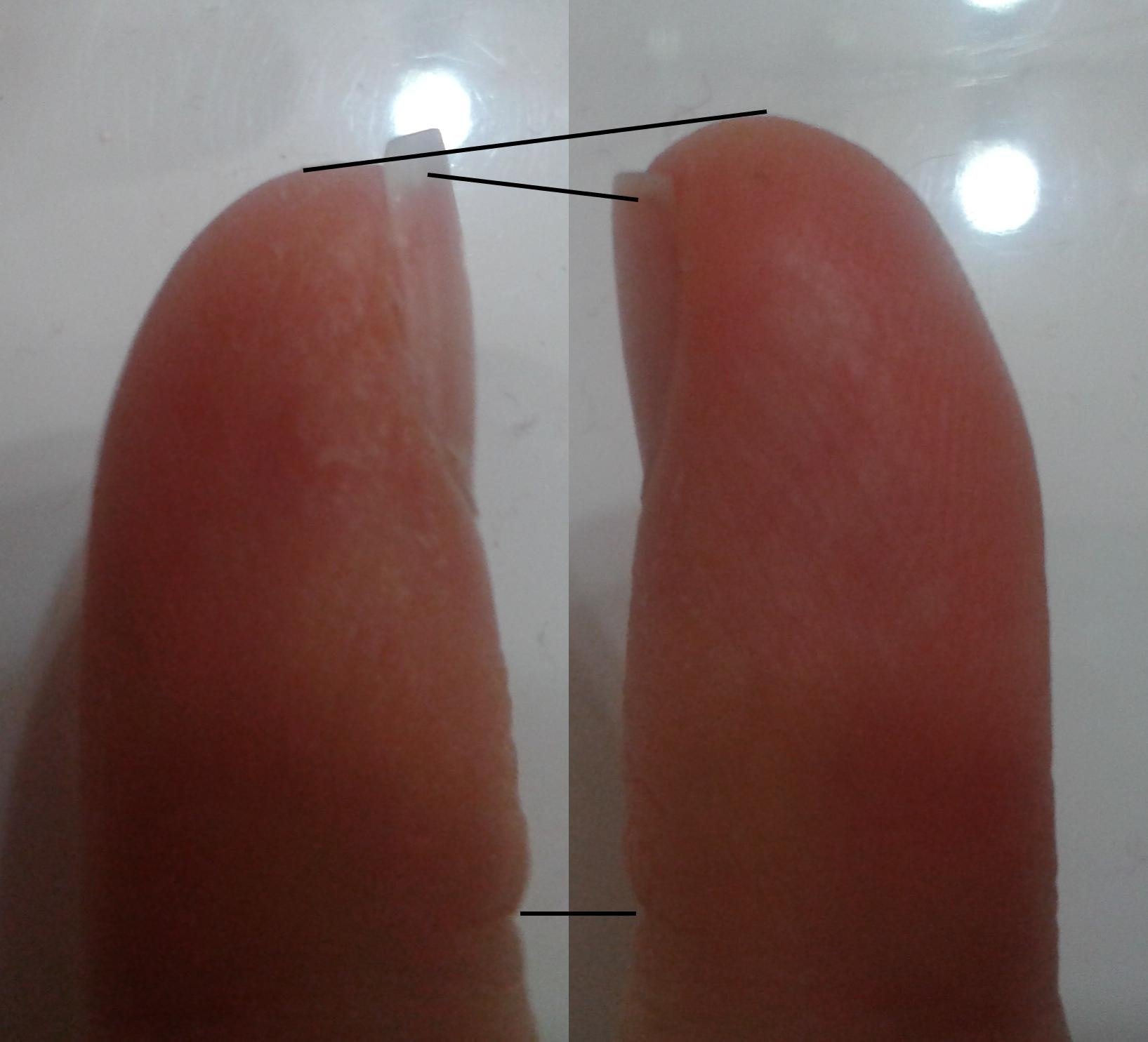 The right and left pinkies of a guitarist